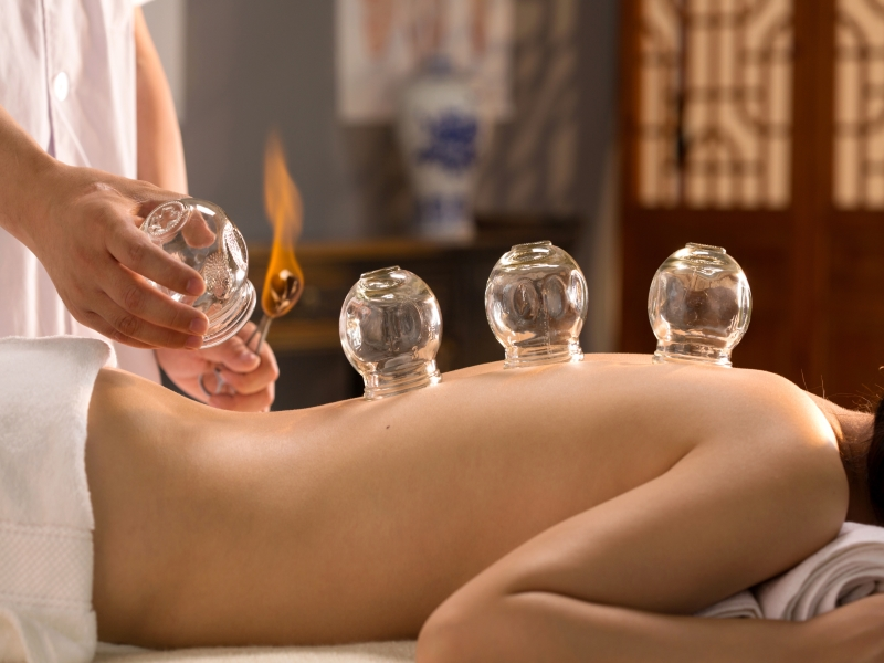 Acupuncture Hollywood Florida Chinese Cupping Therapy